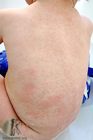 Fever and Rash Pathway
